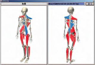 人体筋骨格モデルでの歪み分布